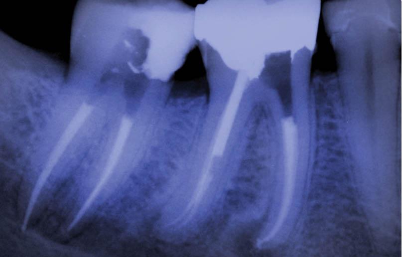 endodoncia-02