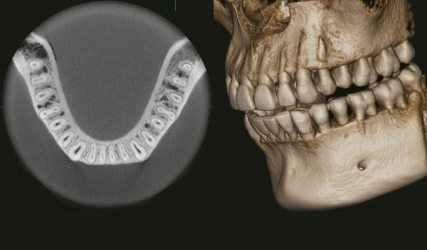 Escaner-dental.jpg