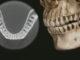 Escáner dental 3D: La importancia de su calidad