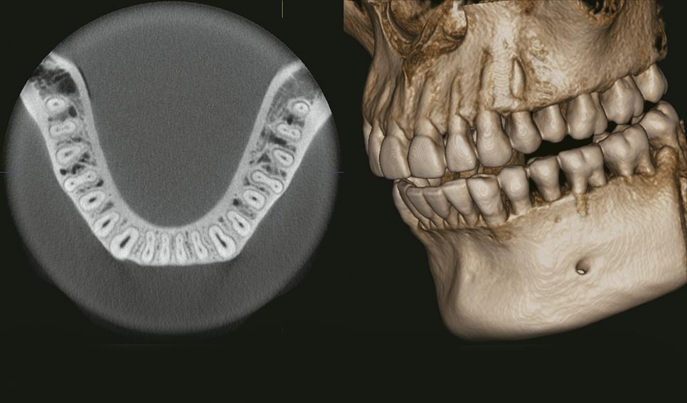 Escáner dental 3D