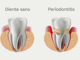 Cómo tratar la periodontitis con láser Wiser