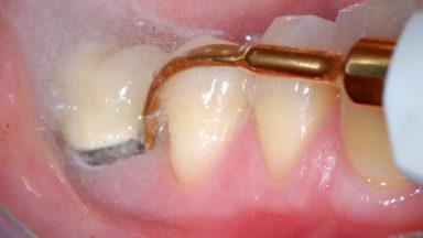 Antibióticos específicos para las infecciones dentales y contraindicaciones