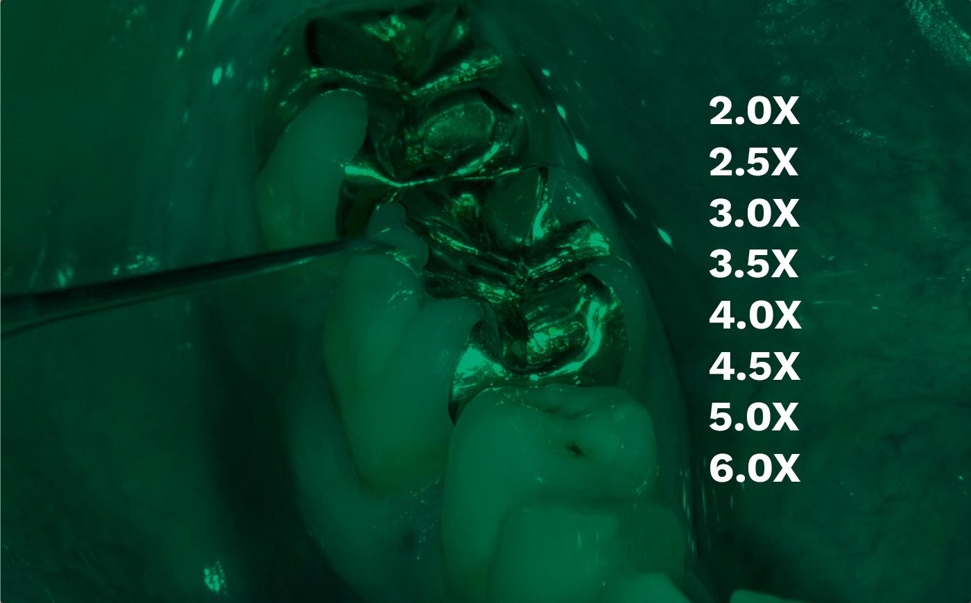 nivel de aumento de las lupas dentales