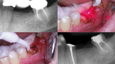 Aplicaciones del láser Wiser (Doctor Smile): Endodoncia