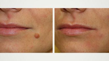 Aplicaciones del láser Pluser (Doctor Smile): Dermatología
