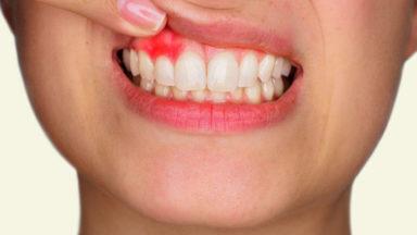Granuloma dental: ¿Tratamiento conservador o quirúrgico?