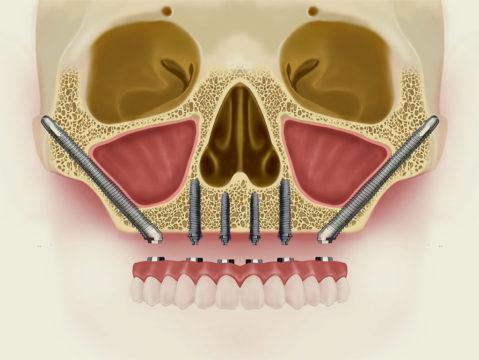 implantes-cigomaticos.jpg