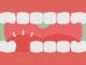 Avulsión dental: ¿Cuál es su tratamiento?